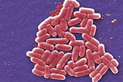 what is a bacterial infection picture 17