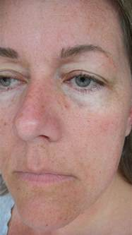 skin cream side effects picture 9