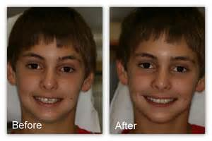 before and after h whitening picture 13