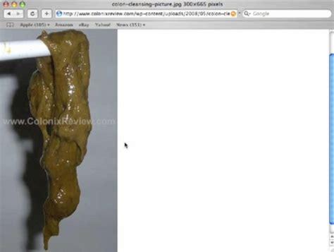 colon detox dr. natura picture 10