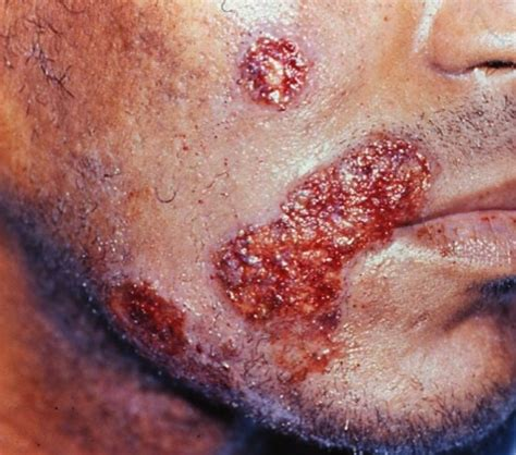 herpes support picture 3