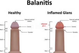 balanitis on an intact penis picture 2