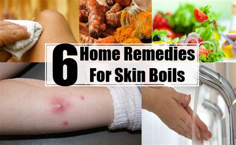 treatment for skin boils picture 11