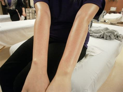 forearm hair removal picture 19