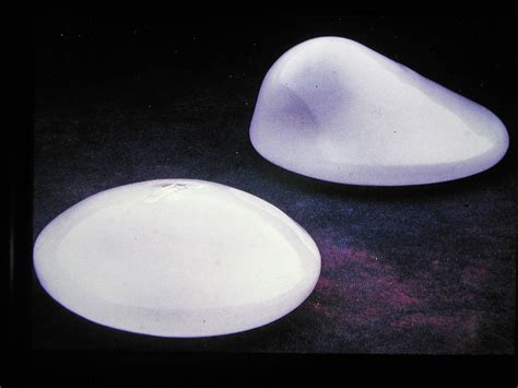 breast enlargement indiana picture 6