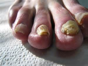 natual cures for nail fungus picture 9