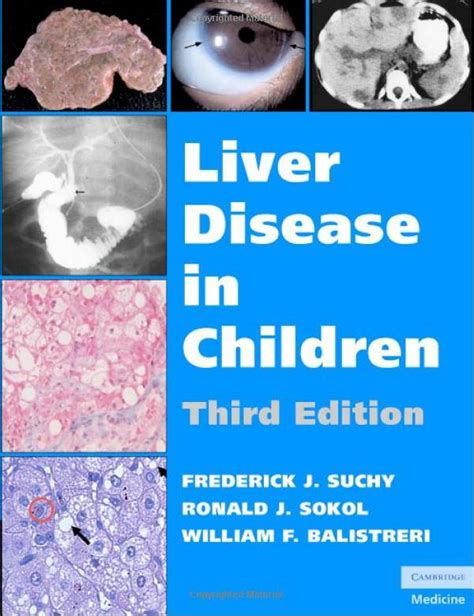 child's a liver disease picture 1