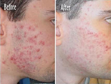 acne scar removal picture 7