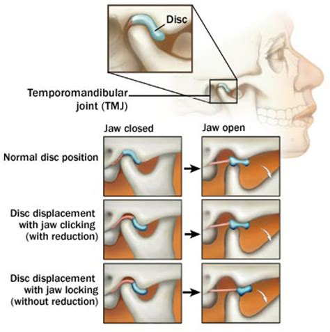 joint jaw pain relief picture 5