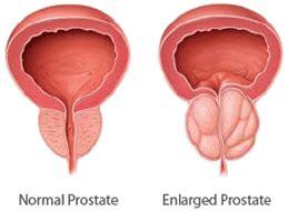 prostate gland health picture 3