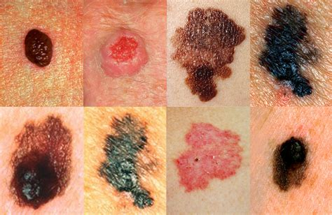 skin cancer photos picture 9