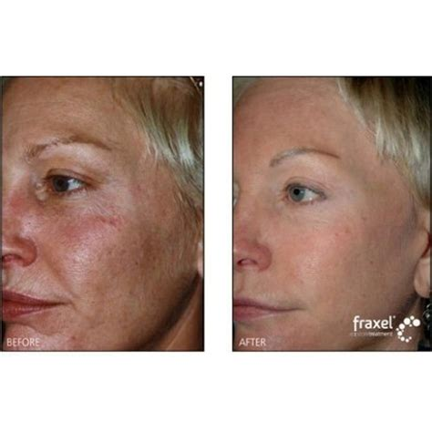 danger of fraxel skin treatment picture 6