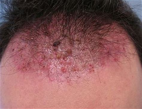 acne on te head picture 14