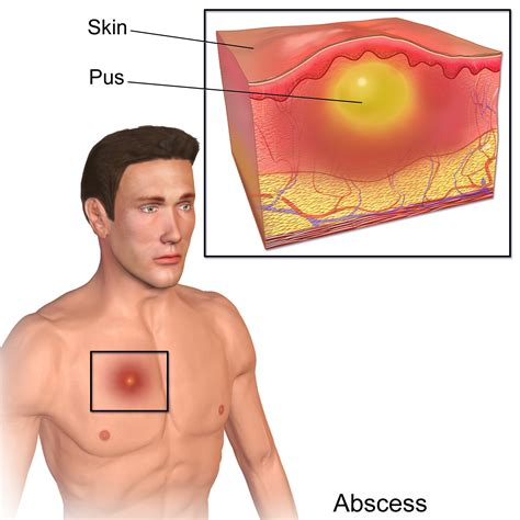 skin abscess and internal cleanse picture 2