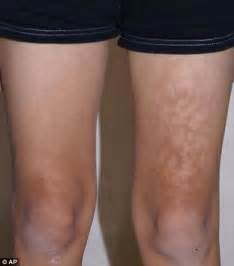 dark skin discolorations on upper thighs picture 17