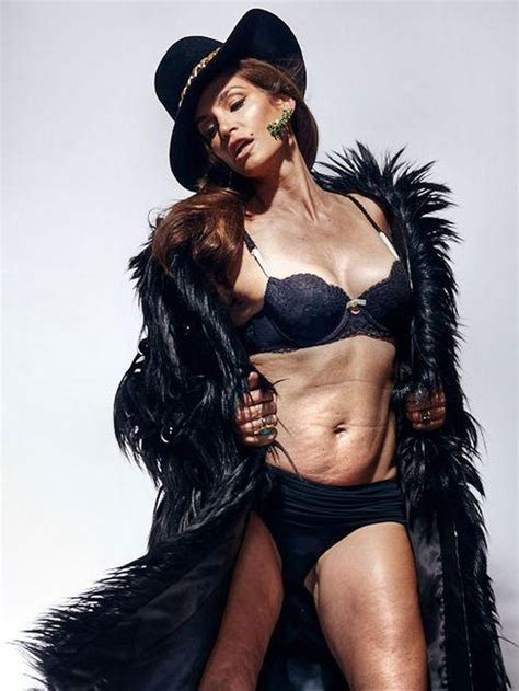 celebrities with stretch marks picture 10