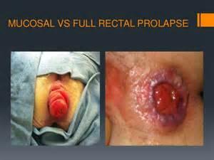 colon prolapse picture 6