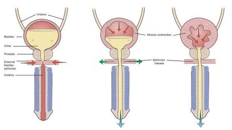 what percent of people have overactive bladder picture 12