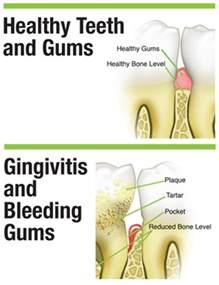 drugs affect on h and gums picture 2