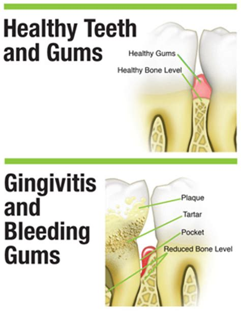 drugs affect on teeth and gums picture 8