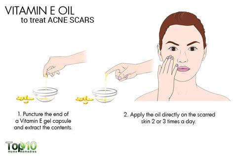 acne and vitamin e picture 9