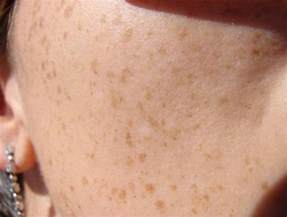 brown patches on skin picture 5
