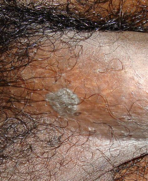 pictures of genital warts picture 3