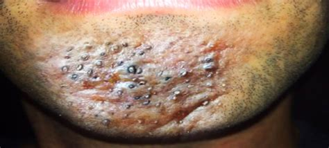 cystic acne causes picture 6