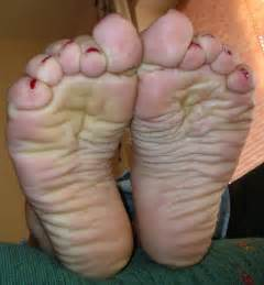 botox foot solution for wrinkled feet picture 4