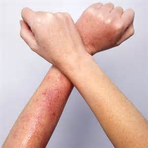skin redness in both arms picture 9