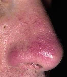 rosacea on nose picture 2
