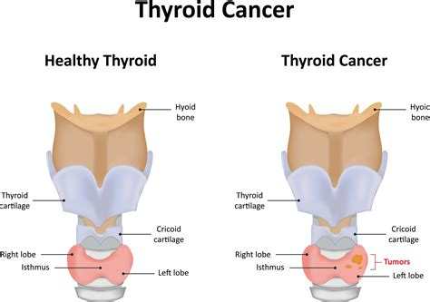 what besides nodules can cause a thyroid to picture 11
