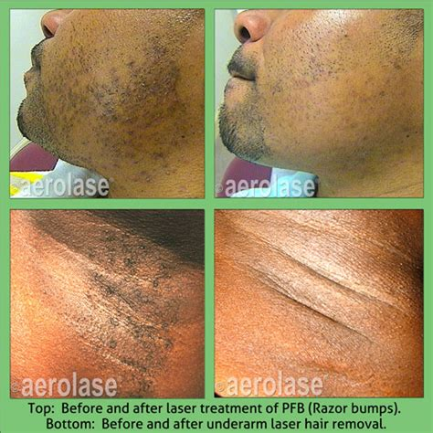 revitol hair removal and african american picture 7