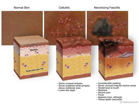lipstenzen side effects picture 11