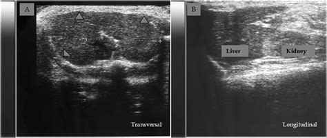fatty liver ultrasound pictures picture 14