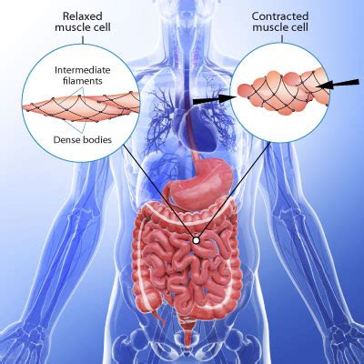 what is colon spasm picture 10