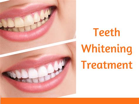 white teeth miami picture 9