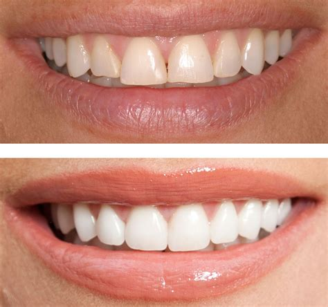 fort lauderdale teeth whitening picture 2