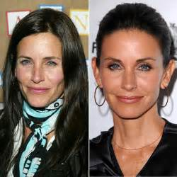 modern of plastic surgery and anti aging picture 2