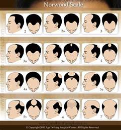 hair loss scale picture 3