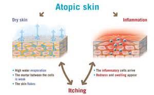 atopy - skin condition picture 7