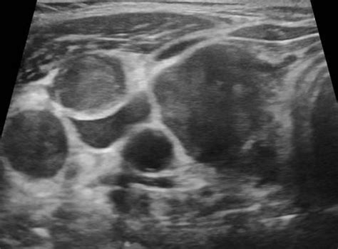 abnormal thyroid picture 10