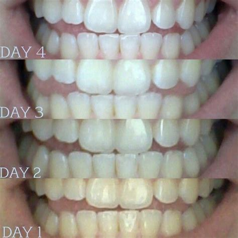 can iodine whiten your h picture 13