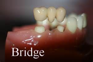 false teeth permanent killeen tx picture 11