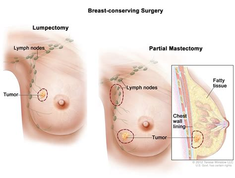 dissolve breast tumors picture 1