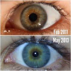 eye color change yeast cleanse picture 9