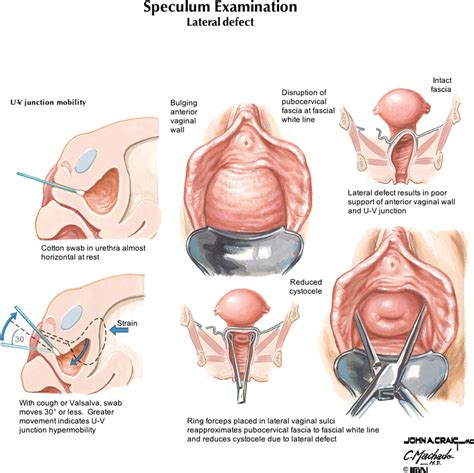 symptoms of a fallen bladder in a female picture 3