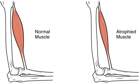 muscle deteriation picture 9