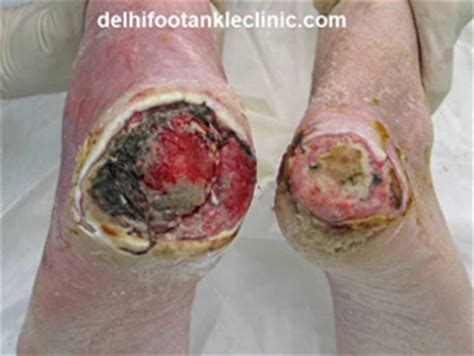 does heel ulcers heal on diabetics picture 2
