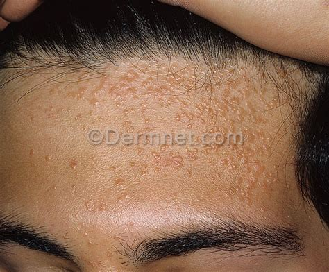 flat warts treatment options found in south africa picture 11
